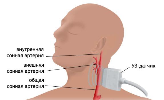 Триплексное сканирование сосудов шеи и головы