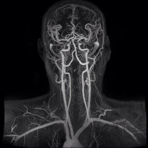 МР ангиография - один из методов обследования сосудов головного мозга