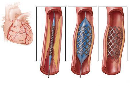 Схематичное изображение коронарного шунтирования сосудов сердца