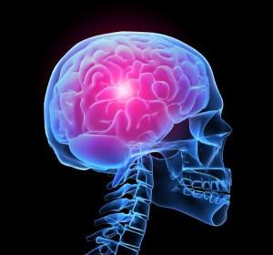 Пренебрежение лечению - возможно инсультное состояние
