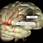 Хроническая ишемия головного мозга — что это такое и какие симптомы