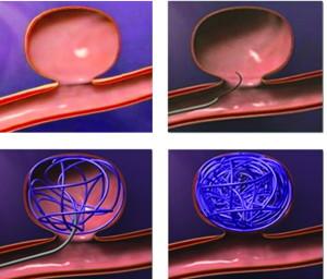 эндоваскулярная эмболизация сосудов головного мозга