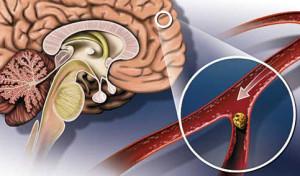 Атеросклероз - один из признаков пройти обследование