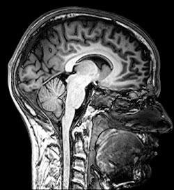 МРТ головного мозга - одно из наиболее информативных обследований