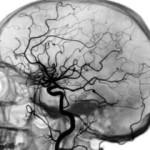 Ангиография для сосудов головного мозга