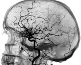 Что показывает ангиография сосудов головного мозга
