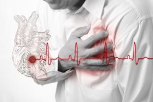 Инфаркт - одно из показаний к проведению стентирования