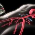 Проверка сосудов сердца коронарографией: каковы последствия?