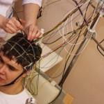 РЭГ сосудов головного мозга: что показывает и как расшифровать