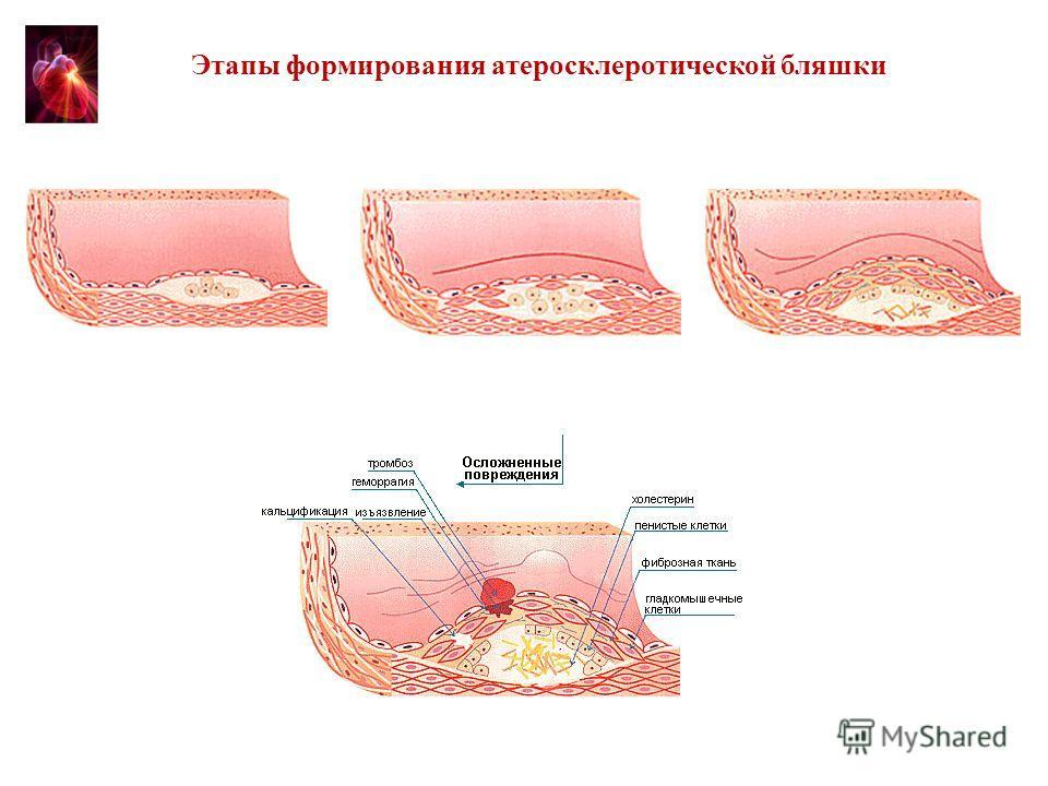 Этапы развития атеросклеротической бляшки