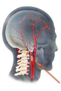 Последствия коронарографии - разрыв артерии