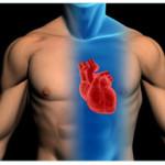 Что такое коронарография сосудов сердца