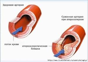 Артерия - здоровая и с патологией