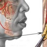 Что такое атеросклероз сосудов шеи и как его лечить