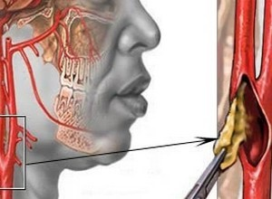 Самые читаемые статьи: Лечение варикоза в виннице