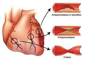 Атеросклероз, тромбоз, спазмы шеи