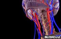 Как диагностируются сосуды шеи с помощью ангиографии