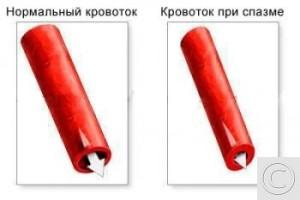 Нормальный кровоток и кровоток при спазме