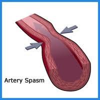 Спази артерии