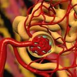 Артериальная гипертензия вторичной формы
