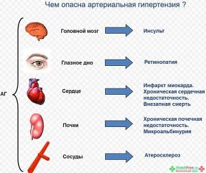 Основные факторы опасности гипертензии