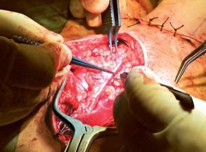 Как проводиться операция