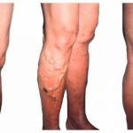 Основные методы лечения варикоза