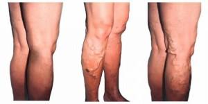 Варикоз - как лечиться данное заболевание