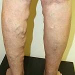 Лечение варикоза вен на ногах — секреты и методы