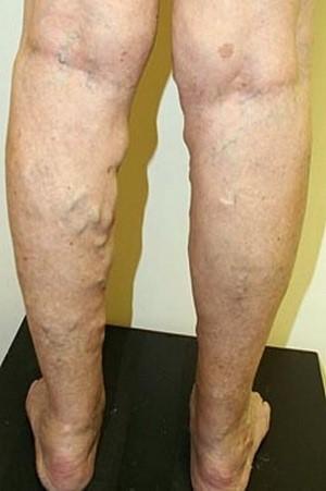 Народные средства лечения варикоза нижних конечностей