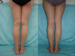 До и после лазерного лечения варикоза
