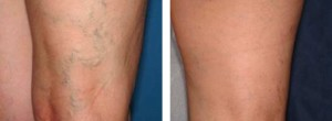До и после лечения от варикоза