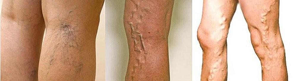 Болезни вен на ногах симптомы