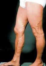 варикоз на ногах у мужчин