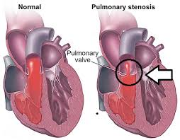 Норма и стеноз легочной артерии