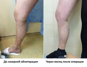 Удаление вен при варикозе - фото до и после