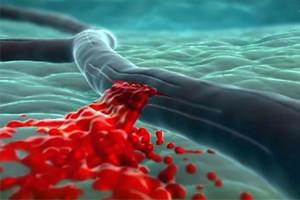 Геморрагический инсульт - кровоизлияние