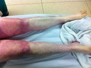 Синдром Лериша на ногах у пациента