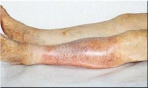 Эндартериит ног у пациента