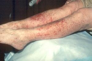 Аллергический васкулит - фото