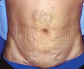 Синдром Бадда-Киари - фото