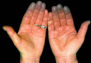 Болезнь Бюргера - закупорка сосудов рук