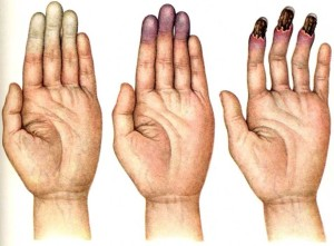 Синдром Рейно - 3 стадии