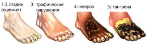 Эндартериит ног - стадии развития