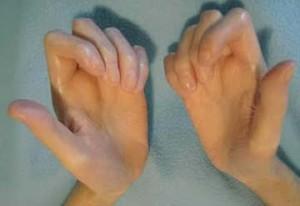 Системная склеродермия рук