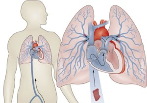 Тромбоэмболия легочной артерии - схема