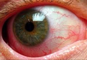 Воспаление сосудистой оболочки глаза - фото