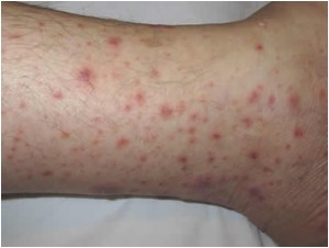 Тромбоцитопения на ноге