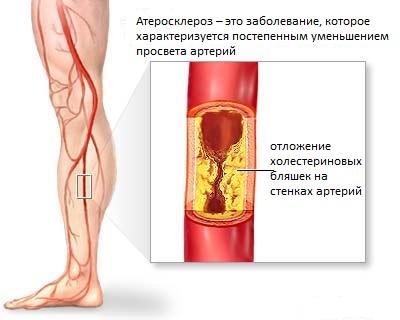 Атеросклероз сосудов ног: проявления, лечение и признаки