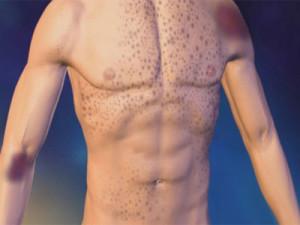 Проявление тромбоцитопении на теле